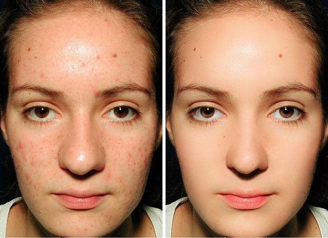 Suavizar la piel con Photoshop - fotonostra.com