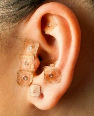 acupuntura sin agujas