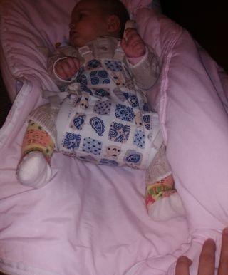 Pañal Ortopédico Bebé