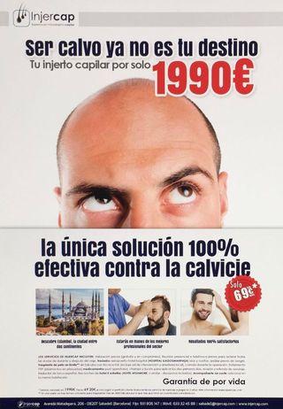 Injerto Capilar Estambul oficina en Sabadell
