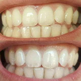 toothpaste for whitening!