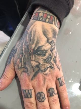 eliminar tatuaje