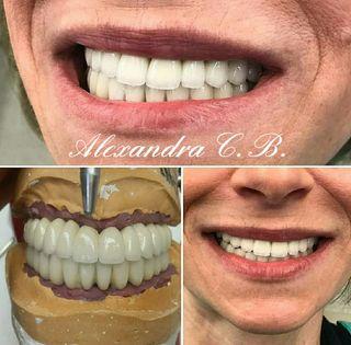Ceramista dental por piezas