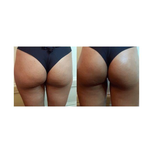 Non surgical Brazilian butt lift