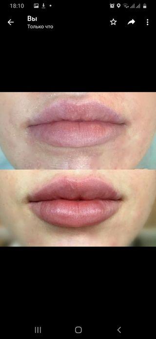 aumento de los labios y arrugas