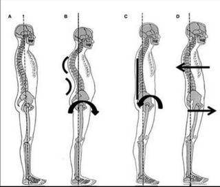 Clase partícular de Posturalogia o Pilates