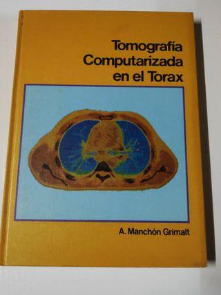 Tomografia Computarizada del Torax
