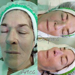limpieza facial profunda y radiofrecuencia