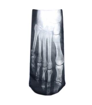 Calcetines divertidos Radiografía de pies